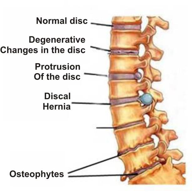 1 fokú csípőízület osteochondrosis)